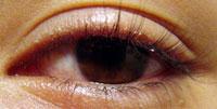 блефарит-симптомы ,виды, лечение