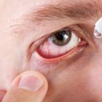 диагностика и лечение синдрома сухого глаза