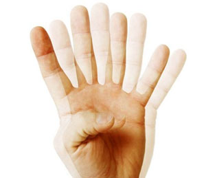 диплопия симптомы