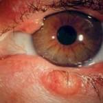 Блефароконъюнктивит