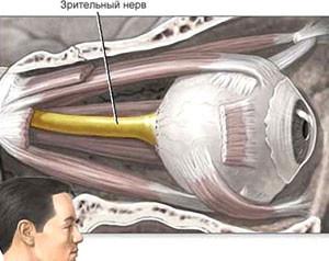 Лечение атрофии зрительного нерва