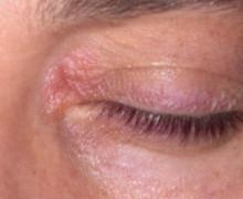 Блефарит - симптомы, виды, лечение