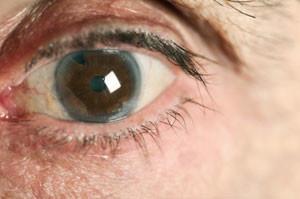 Лечение катаракты глаза