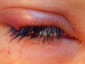 Ячмень на глазу - лечение и профилактика