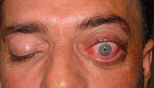 Лечение экзофтальма
