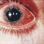 Иридоциклит симптомы
