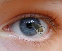 Лечение мушек перед глазами