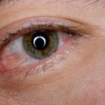 Покраснение глаз причины