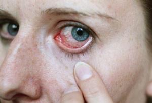 Лечение покраснения глаз