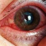 Кровоизлияние в глаз причины