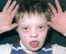 лекарство для избавления от синдрома Дауна