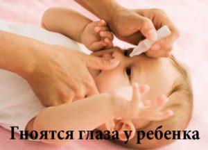 Гной в глазах ребенка